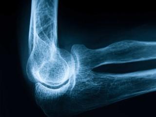 Curso Online de Rayos X con Diagnóstico General: Práctico