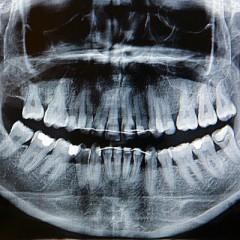 Técnico Profesional en Radiología Dental